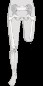 bovenbeenamputatie of transfemorale amputatie
