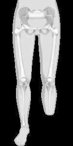 onderbeenamputatie of transtibiale amputatie