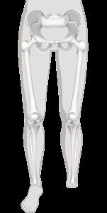 voetamputatie