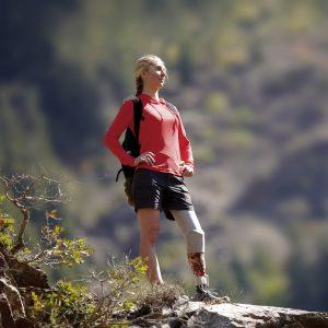 Voorbeeld van een vrouw met een prothese en een suspensiesysteem die een actief leven leidt.