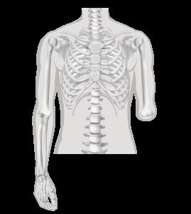 Elleboogamputatie - Amputatieniveau arm-amputatie
